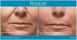medical spa services | radiesse