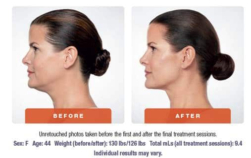 Kybella | medical spa services