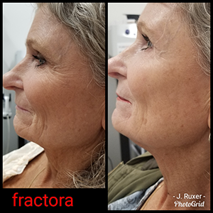 Facial Resurfacing | Revive Paducah